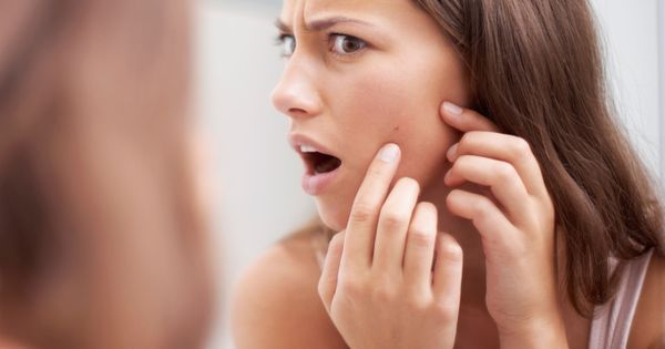 acné-grossesse